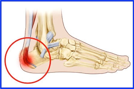 Heel Pain Hurts! | Feel Better