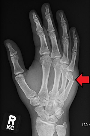 Boxers Fracture 5th metacarpal fracture